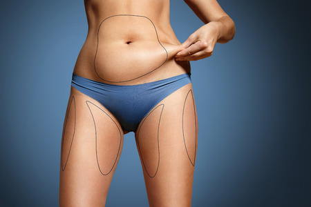 fat girl: woman pinched her fat on body. Body with marked zones for liposuction
