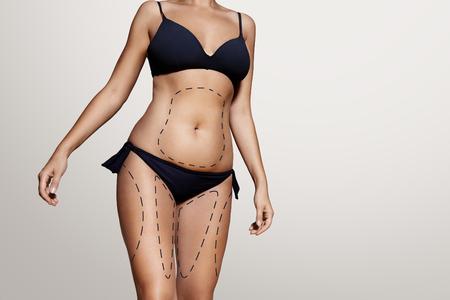 cuerpo humano: líneas de liposucción en el cuerpo de una mujer