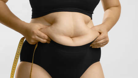 Woman body fat belly. Obese woman hands holding excessive tummy fat. Change diet lifestyle concept to shape up healthy stomach muscle. Studio anonymous shot photo of body parts. Archivio Fotografico