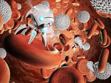 Nanorobot surgery