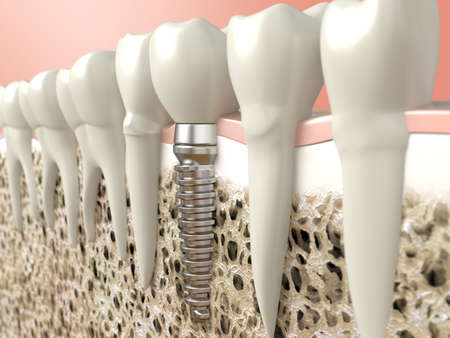 dentistry: Very high resolution 3d rendering of a dental implant