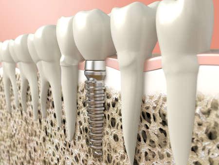 Zeer hoge resolutie 3D-rendering van een tandheelkundig implantaat