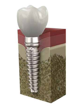 Very high resolution 3d rendering of a dental implant photo