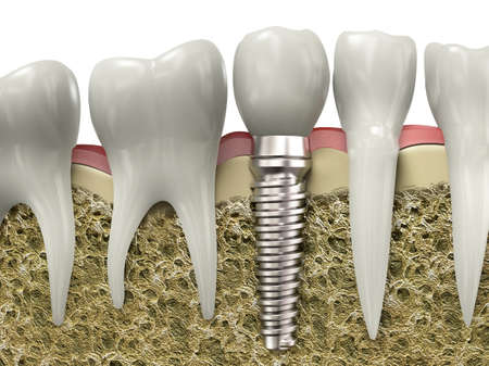 prosthesis: Very high resolution 3d rendering of a dental implant