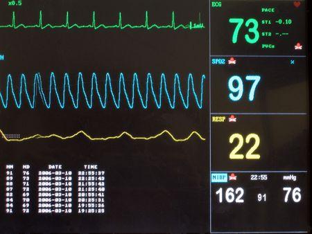 vital signs: Exhibici�n de la pantalla de ECG