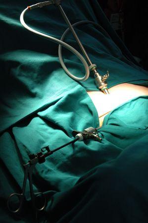 Demonstration of minimally invasive surgery Stock Photo - 598331