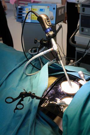 minimally: Demonstration of minimally invasive surgery