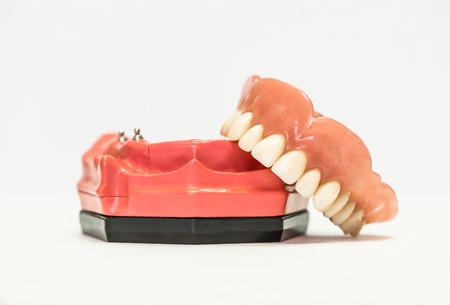 dentures: Dental phantom, dentures isolated on white background, dental implants