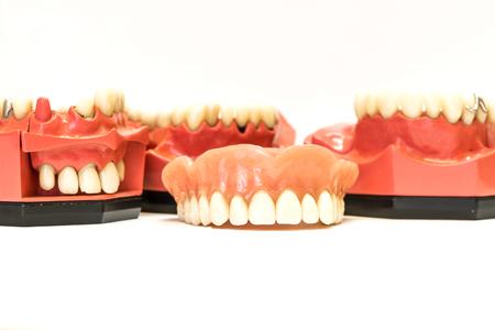 dentures: Dental phantom, dentures isolated on white background