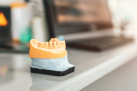Dental gypsum model of the teeth in dental cliinic