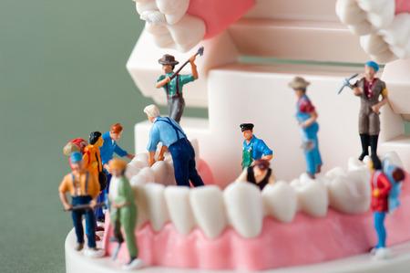 Model of the teeth 写真素材