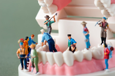 miniature people: Model of the teeth Stock Photo