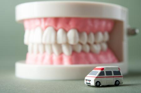 caries dental: Modelo de los dientes Foto de archivo
