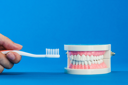periodontal disease: Model of teeth Stock Photo