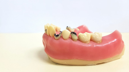 Dental model present common dental disease such as caries, wisdom tooth Stock Photo