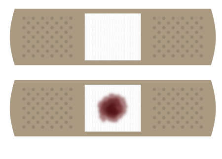 facing: Illustration of two large bandages with the wound pad facing up.  One bandage is clean while the second bandage has a blood stain on it.