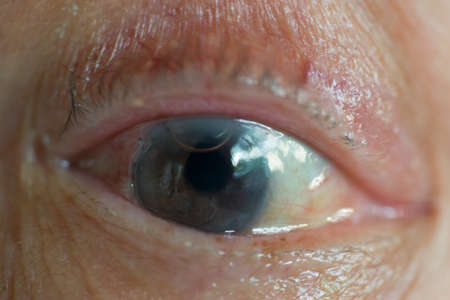 suture: Old mans eye with trace of cornea surgical operation, air bubble, and silk suture Stock Photo