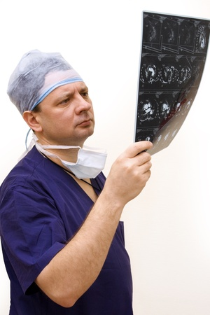 experienced doctor looking at tomogram in hand Stock Photo - 9351276