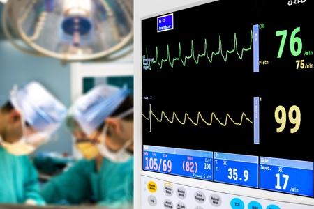 emergencia: cardiogram paciente en la sala de operaci�n