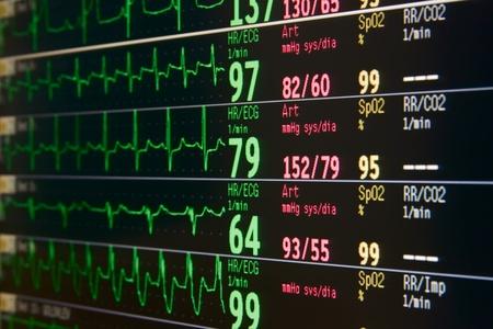 pulso: monitor lcd de la unidad de cuidados intensivos para varios pacientes