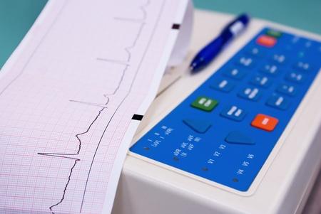 ecg heart: cardiograph with cardiogram