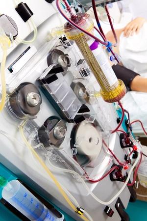 blood purification medical procedure (plasmapheresis, dialysis) with medical device.