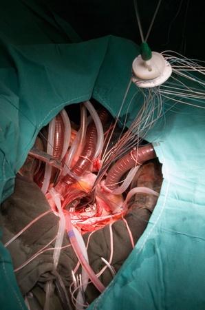 cardiac surgery: cardiac surgery
