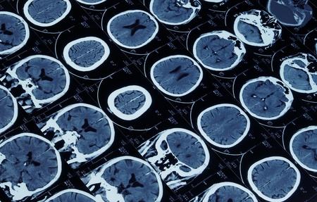 resonancia magnetica: AIRRAM imagen de resonancia magn�tica del cerebro y el cr�neo Foto de archivo