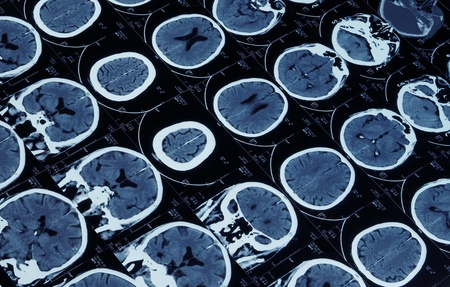 mutiple magnetic resonance image of brain and cranium photo