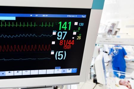 neonatal: Neonatal ICU with ECG monitor on foreground Stock Photo