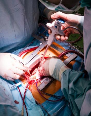 Cardiac surgery with cardiopulmonary bypass photo