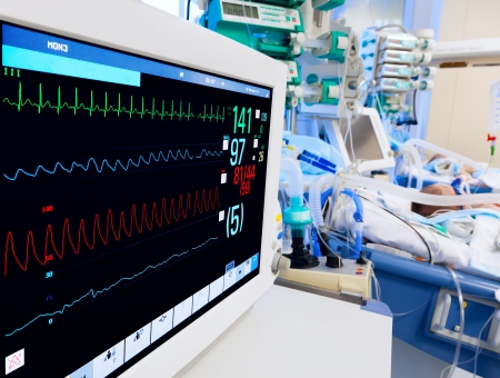 electrocardiograma: UCI Pediátrica con monitor de ECG en primer plano