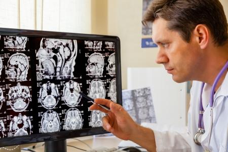 mri scan: Doctor examining an MRI scan of the Brain on Monitior