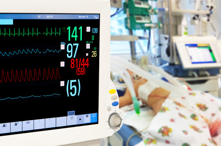 ekg: Patients monitor in neonatal intensive care unit