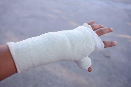 La mano del herido y una férula.