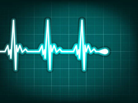 stress test: Electrocardiogram track of human heart. EPS 8 vector file included Illustration
