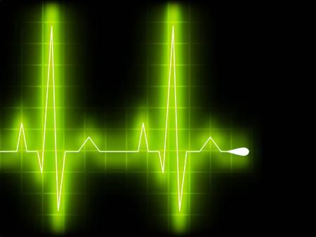 Grünes Herz höher schlagen. EKG Graph.