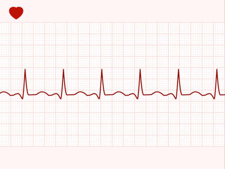 cardiograph: Normal electronic cardiogram.  Illustration