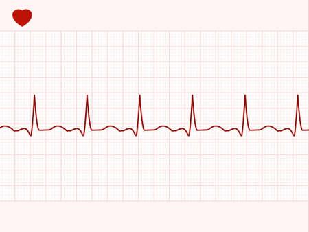 electrocardiogram: Normale cardiogramma elettronico.  Vettoriali