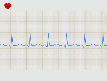 of electrocardiogram: Cardiogram electr�nico normal.  Vectores