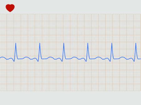 Normal electronic cardiogram.  Stock Vector - 9034848