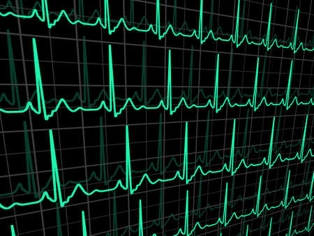 cardiograph: ECG tracing monitor. EPS 8 vector file included Illustration