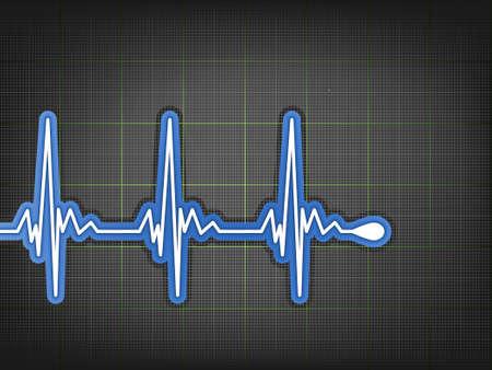 electrocardiograma: Monitor de electrocardiograma ECG.  Vectores