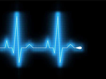 Heartbeat resplandor en un monitor negro.