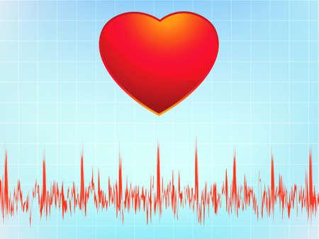 Heart attack electrocardiogram-ecg.  Vector