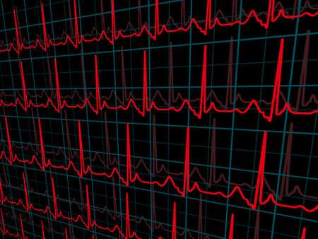 cardioid: L�nea de gr�fico 3D en la cuadr�cula. Archivo de 8 EPS vectoriales incluido