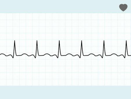 electrocardiograma: Electrocardiograma normal ECG. Archivo de 8 EPS vectoriales incluido Vectores