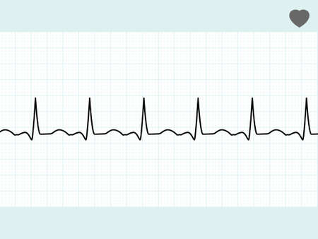 electrocardiogram: Normal electrocardiogram ECG. EPS 8 vector file included