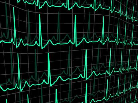 cardioid: Latidos del coraz�n en un monitor negro. Archivo de 8 EPS vectoriales incluido