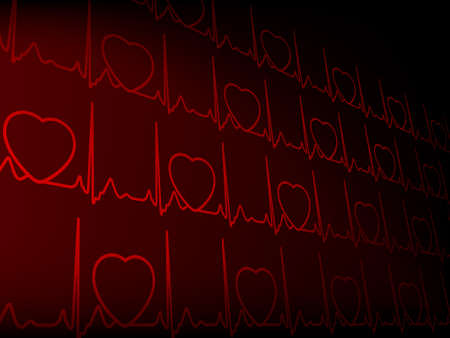 Cardiogram illustration with shadow background. EPS 8 vector file included Vector